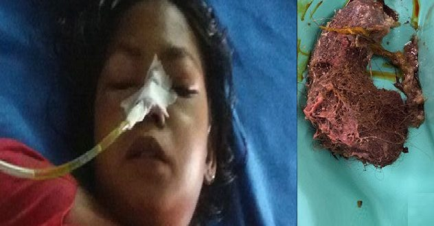 What Doctors Have Found In The Stomach Of This Girls Will Leave You Without Words! Hair Styling Tips