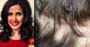 OMG: This woman has become almost bald because of a shampoo! Hair Styling Tips