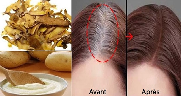 100% Effective Home Recipe For You To Rid Of White Hair Hair Styling Tips