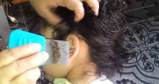 She was combing her daughter's hair when she made a frightful discovery! Hair Styling Tips