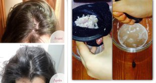 The Most Economical And Most Effective Recipe For Hair Growth 3 Times More Accelerated To Do at Home DIY Hairstyles